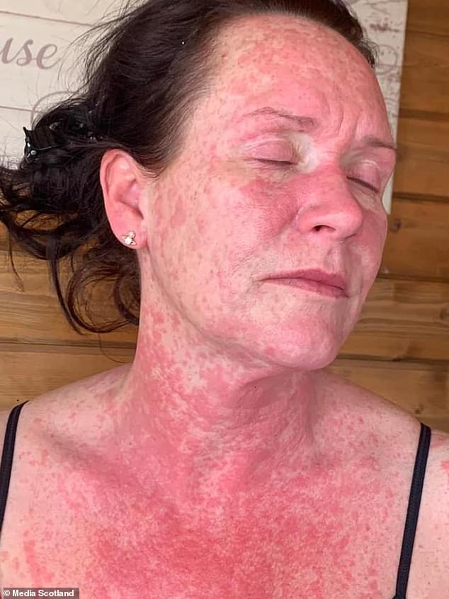 Mom Suffers Agonizing Rash All Over Body Following AstraZeneca Vaccine